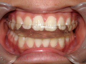 矯正歯科の特徴